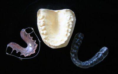 Få styr på tandpinen med en bideskinne